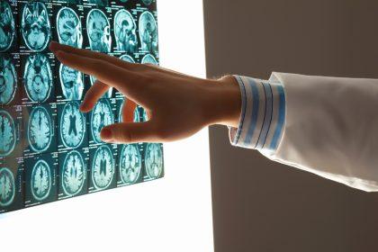 doctor examining brain scan